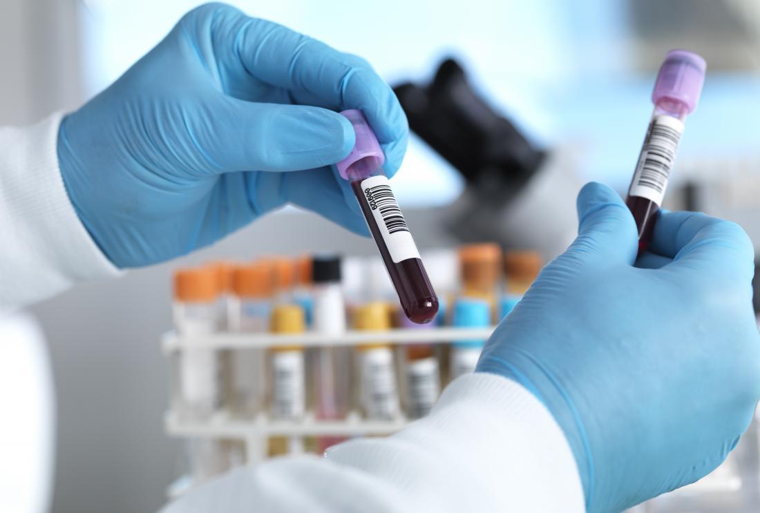"""Niveles muy bajos de colesterol """"malo"""" pueden aumentar el riesgo de accidente cerebrovascular"""