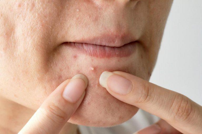 Qué hacer con los granos de la barbilla